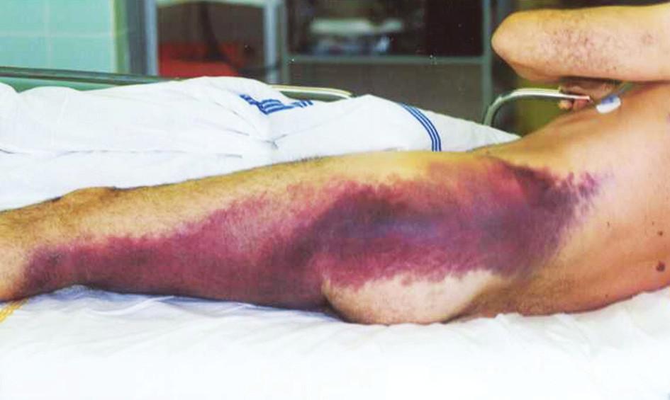 Krvácení do měkkých tkání při předávkování warfarinem Fig. 1. Soft tissue bleeding due to warfarin overdose