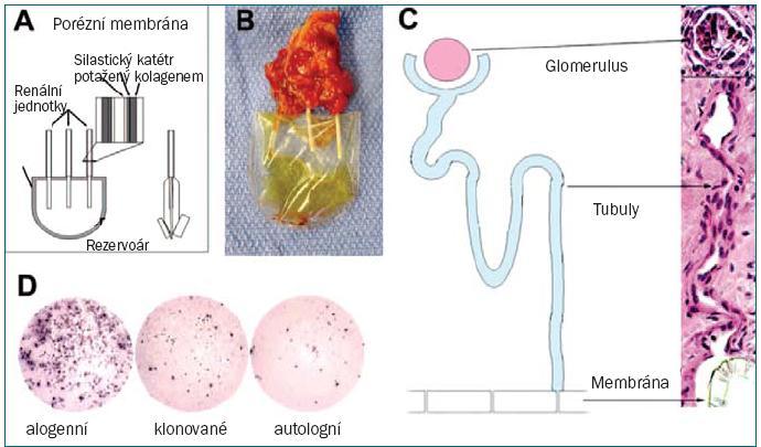 """Kombinace technik terapeutického klonování a tkáňového inženýrství při vytváření renální tkáně. A. Ilustrace renální jednotky. B. Renální jednotka osázená klonovanými buňkami 3 měsíce po implantaci, vykazuje nahromadění tekutiny podobné moči. C. Byla prokázána zřejmá jednosměrná kontinuita mezi zralými glomeruly, tubuly a polykarbonátovou membránou. D. """"Elispot"""" analýzy frekvence T-buněk vylučujících IFN gama po primární a sekundární stimulaci pomocí alogenních renálních buněk, klonovaných renálních buněk nebo nukleárních dárcovských fibroblastů."""