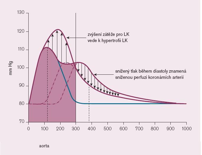 Schéma 3. Patofyziologické následky vzestupu centrálního krevního tlaku.