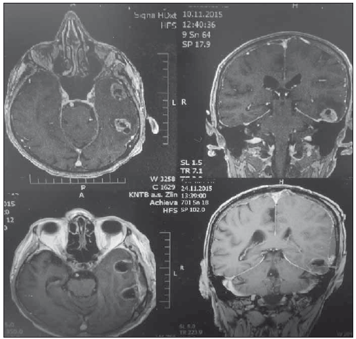 Před- a pooperační MR mozku jednoho z pacientů s multiformním glioblastomem. Fig. 2. Pre- and post-operative MRI brain of one of the patients with glioblastoma multiforme.