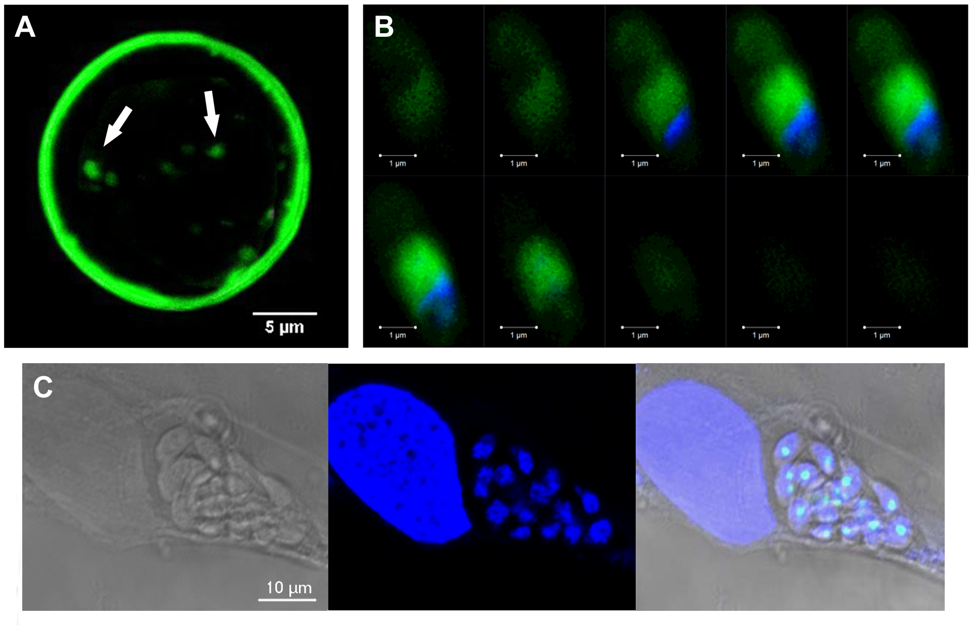 TgNF3 is present exclusively in the cytoplasm of dormant bradyzoites and relocates in the nucleolus during bradyzoite to tachyzoite conversion.
