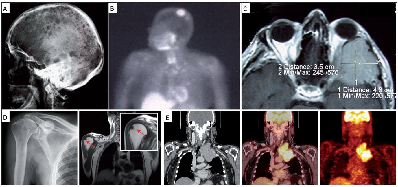 Demonstrace přínosu radiografických a radionuklidových technik v rozpoznání jednotlivých forem myelomové kostní nemoci [14,19].