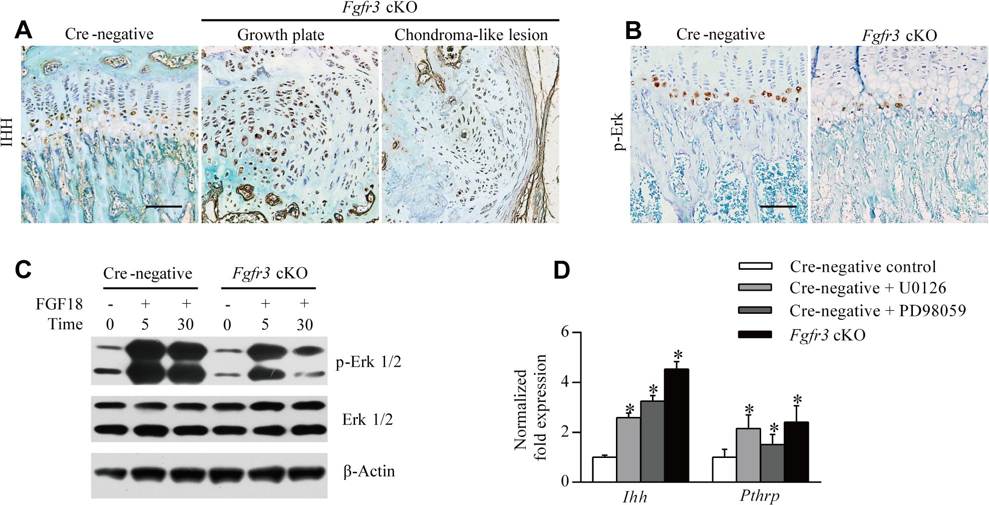 Loss of <i>Fgfr3</i> suppresses ERK activation but enhances IHH expression.