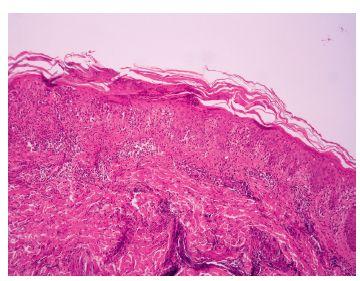 Hyperkeratóza s parakeratózou a fragmenty jader lymfocytů, akantóza, infiltrát lymfocytů s exocytózou do akantotické epidermis