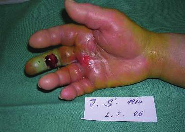 Kazuistika – gangréna prstu nejasné etiologie