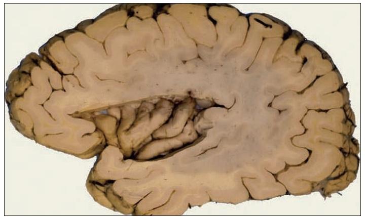 """Levá insula lidského mozku. Insula je rozsáhlá korová oblast skrytá v Sylviově rýze mezi čelním a spánkovým lalokem mozku. Její objem je u lidí v relaci s makaky o 30% větší. V insule nacházíme 5 – 7 šikmých závitě, její makroskopická anatomie je však kolísavá, liší se i na levé a pravé straně téhož mozku. U lidí jsou primární interoceptivní, chuťové a vagové projekce ve střední insulární kůře, u makaků jsou projekce odlišné. Přední a spodní insulární a přilehlá operkulární kůra je lidská vývojová vymoženost, u makaků její analogie prokázána nebyla. Zpracovávání interoceptivních informací probíhá """"zezadu dopředu"""", kaudálně – rostrálně, na obrázku zprava doleva. Přesné propojení insuly s ostatními částmi mozku je předmětem probíhajícího výzkumu (6)."""