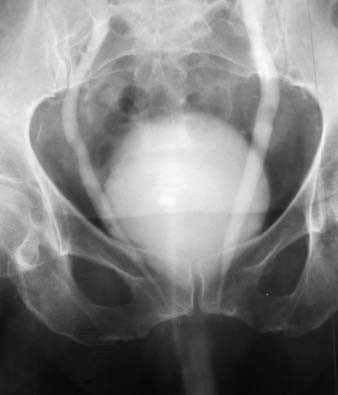 Prolaps m.m.,včetně trigona a ureterů (IVU).