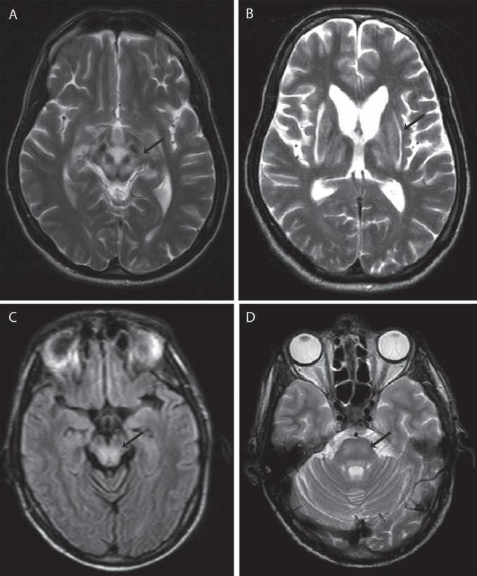 Patognomické MR nálezy u WN (označené šipkami). Obr. 1a) Obraz medvídka pandy v mezencefalu vzniklý na podkladě hypointenzit v substancia nigra a nucleus ruber a hyperintenzit v okolním mesencefalu v T2 váženém obrazu. Obr. 1b) Příznak jasného klaustra v T2 váženém obrazu. Obr. 1c) Hyperintenzity v mezencefalickém tectu způsobené demyelinizací, FLAIR sekvence. Obr. 1d) Hyperintenzity v pontu připomínající osmotickou myelinolýzu, T2 vážený obraz.