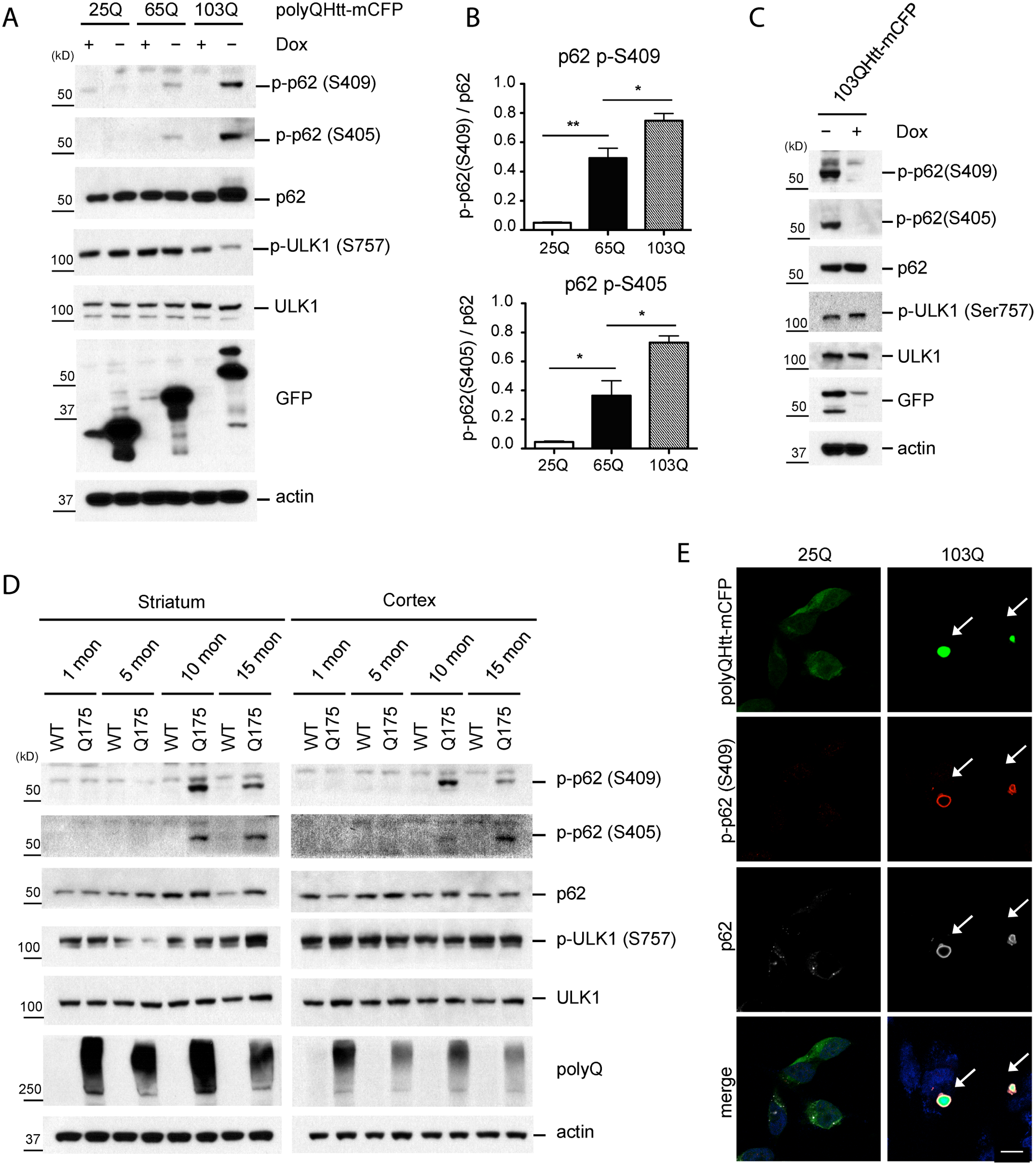 Phosphorylation of p62 at S409 is enhanced upon expression of polyQ-Htt proteins.