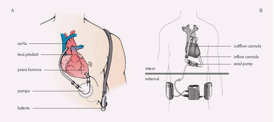Obr. 3. Portabilný implantovateľný mechanický podporný systém ľavej komory. A – pneumatický, B – axiálny.