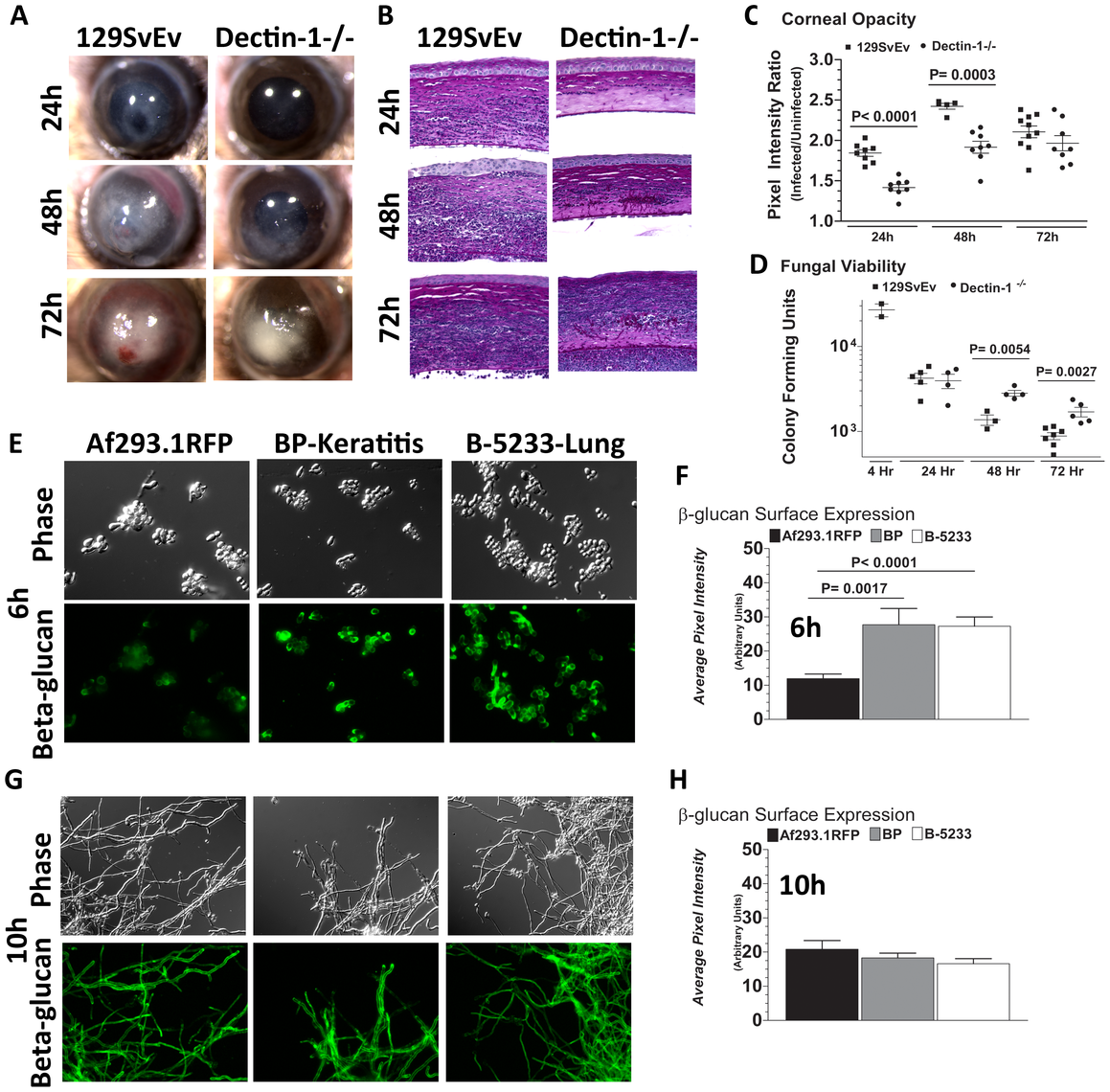 Role of Dectin-1 in keratitis caused by a clinical isolate of <i>A. fumigatus</i>.