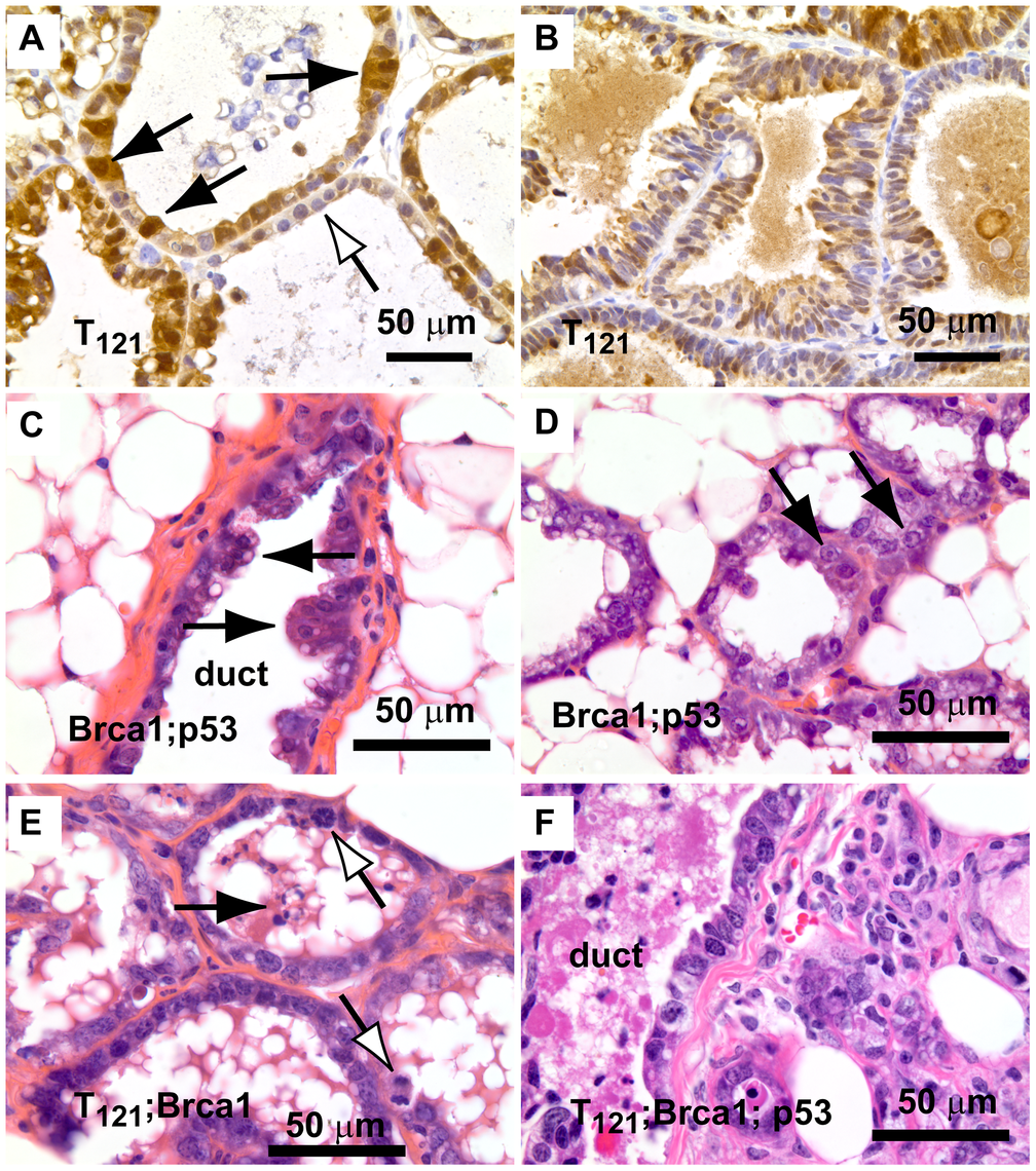 Early lesions in lactating mammary glands.