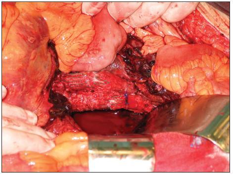 Stav po sutuře rozpojených částí Fig. 6. A status after suture of discontinued parts