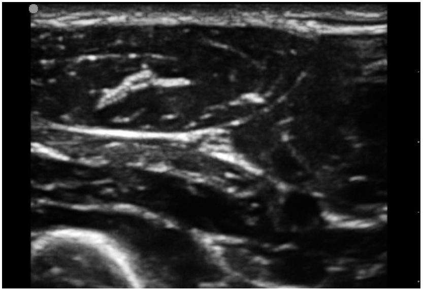 Typicky trojúhelníkovitý tvar n. ulnaris na příčném řezu asi 5cm pod loktem Z hloubky vpravo přistupuje k nervu a. ulnaris. Okolí tvoří typický obraz svalů. Vlevo v hloubce je patrná výrazně hyperechogenní linie periostu ulny.