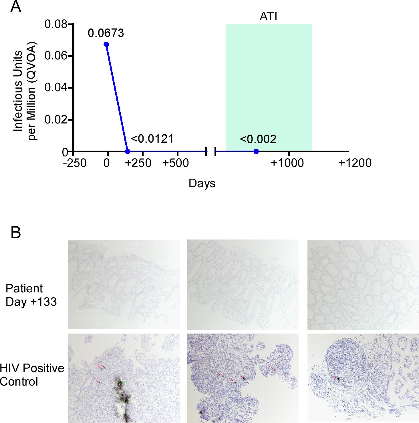 HIV-1 reservoir measurement in the peri-transplant period.
