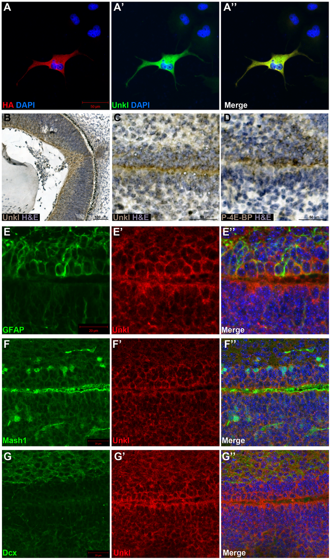 Unkl is expressed in the developing mammalian eye and SVZ.