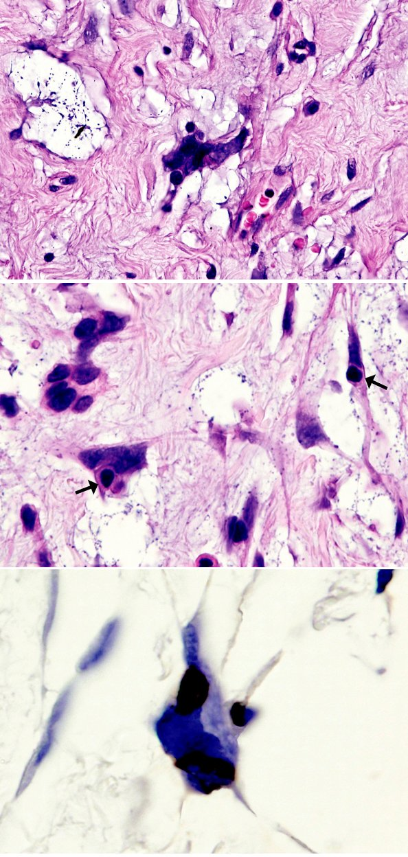 Fig. 2. A and B, close association between neoplastic and lymphoplasmocytic cells (arrows in B) is suggestive of emperipolesis, C, LCA immunostain highlights lymphoplasmocytic cells