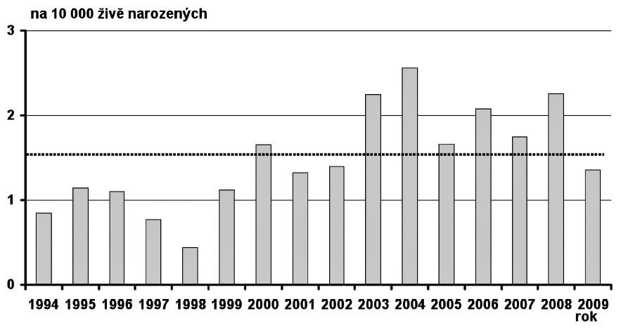 Prevalence Patauova syndromu v České republice v období 1994–2009 Fig. 18. Prevalence of Patau syndrome in the Czech Republic in 1994–2009