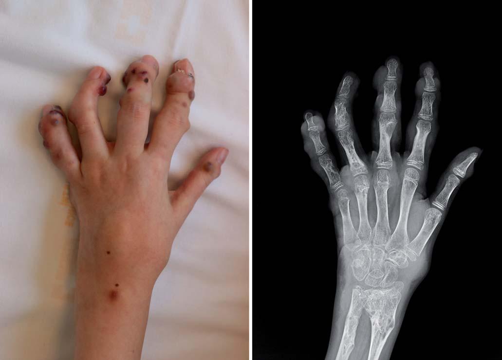 Fotografi e levé ruky (zdroj: archiv KDO) a RTG snímek levé ruky (zdroj: archiv KDR).