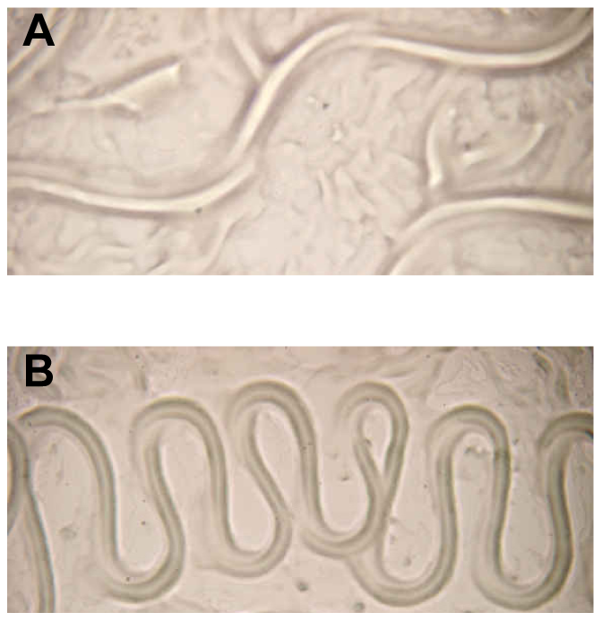 Aberrant translocation of <i>C. elegans</i> on <i>Y. pseudotuberculosis.</i>
