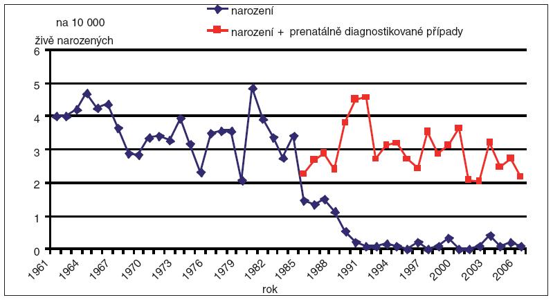 Incidence prenatální diagnostiky a dětí narozených s anencefalií v ČR, 1961 – 2006