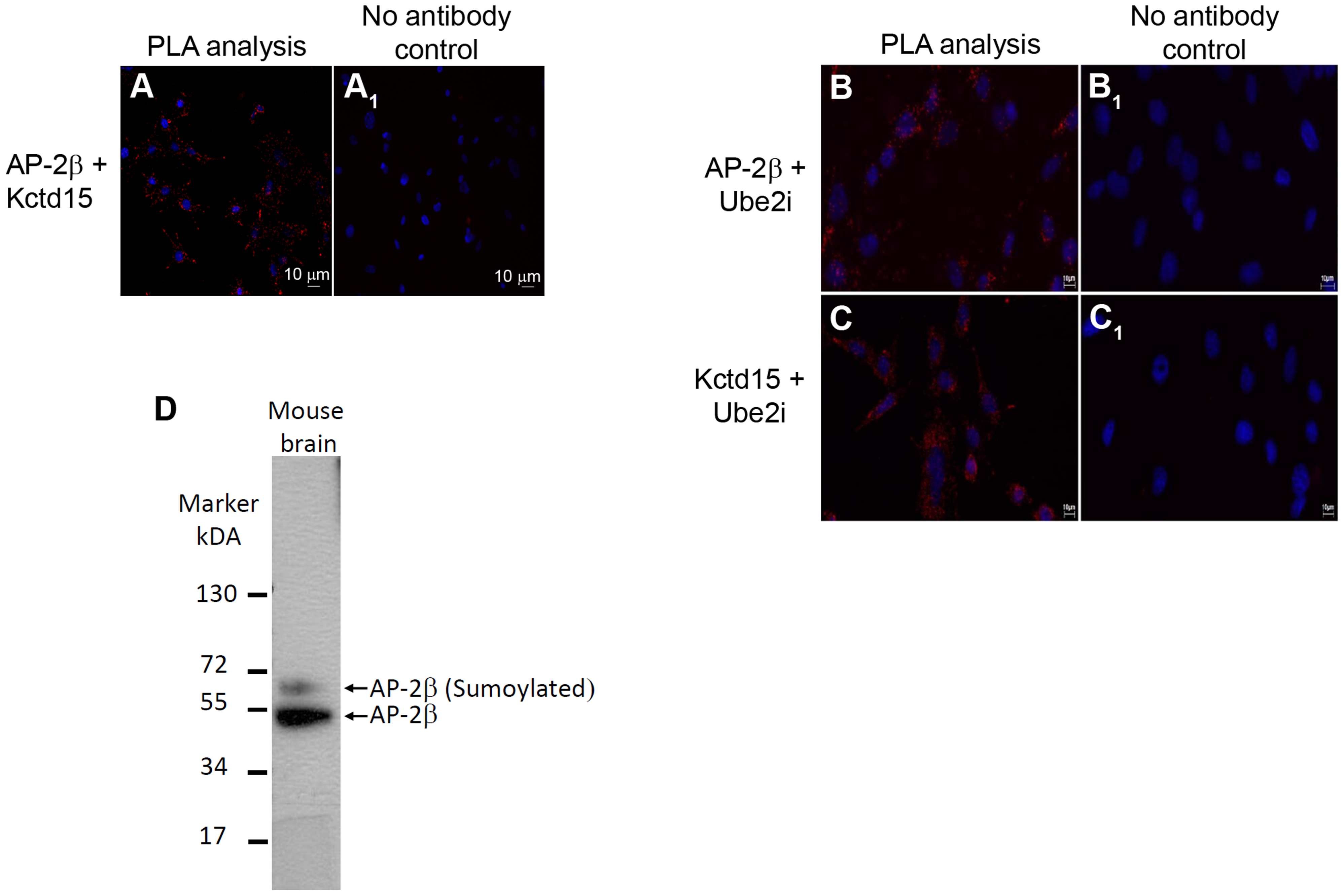 Detection of AP-2β and Kctd15 interactions in mHypoE-N25/2 cells using PLA.