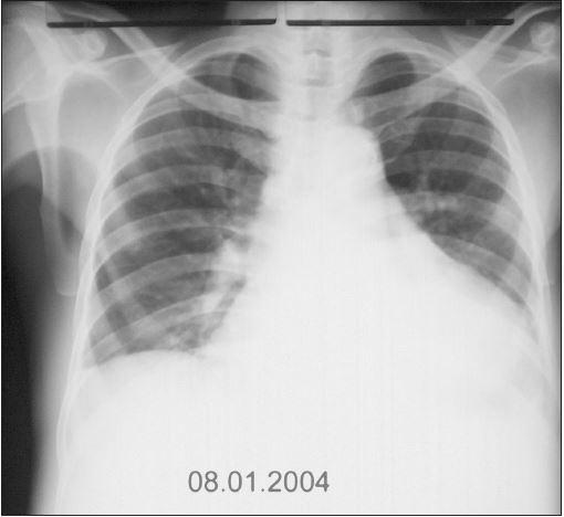 RTG srdce a plic (8. 1. 2004): Patrná regrese velikosti srdečního stínu přetrvává dilatace doleva, téměř ke stěně hrudní, regrese fluidotoraxu, ostatní nález stacionární.