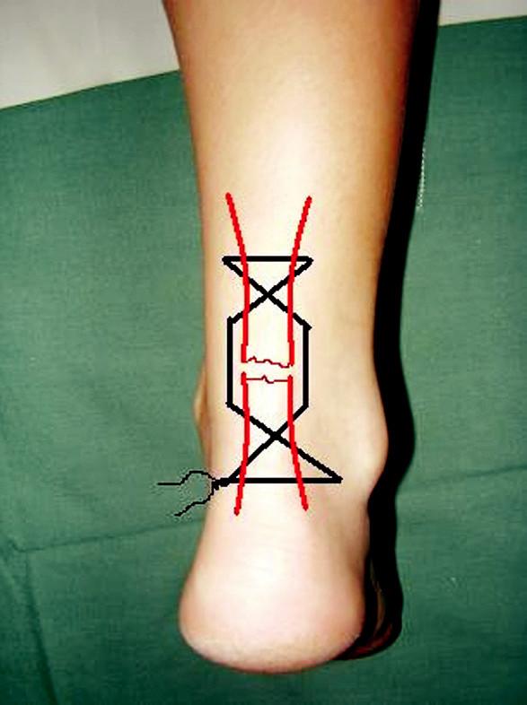 Perkutánní sutura – dokončení Pic. 5. Percutaneous repair – accomplishment