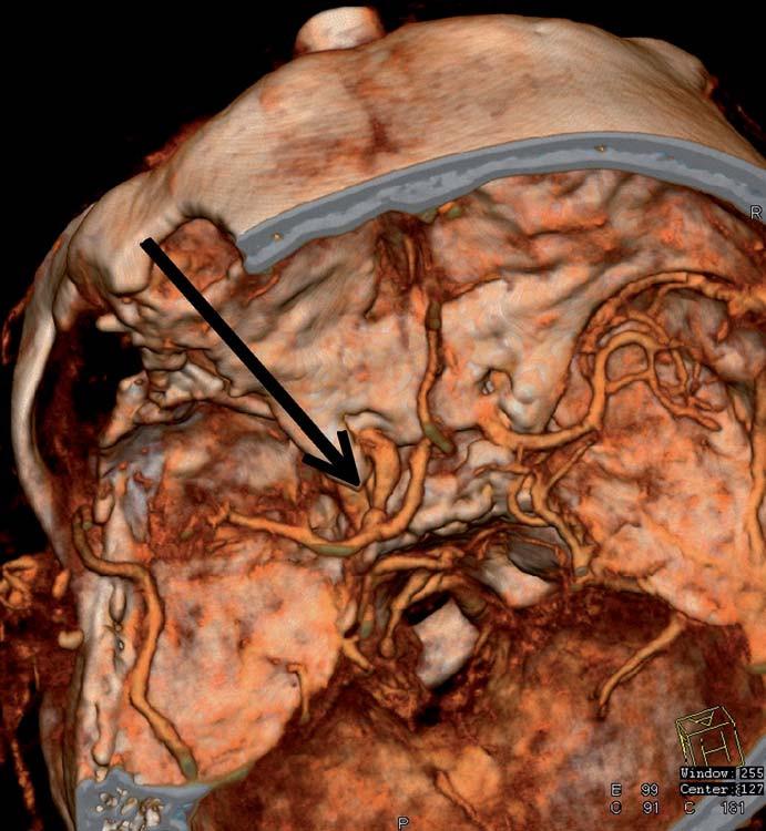 CT angiografie zobrazuje průchodnou, mírně zúženou krkavici po sutuře defektu a chudší náplň periferie střední mozkové tepny.