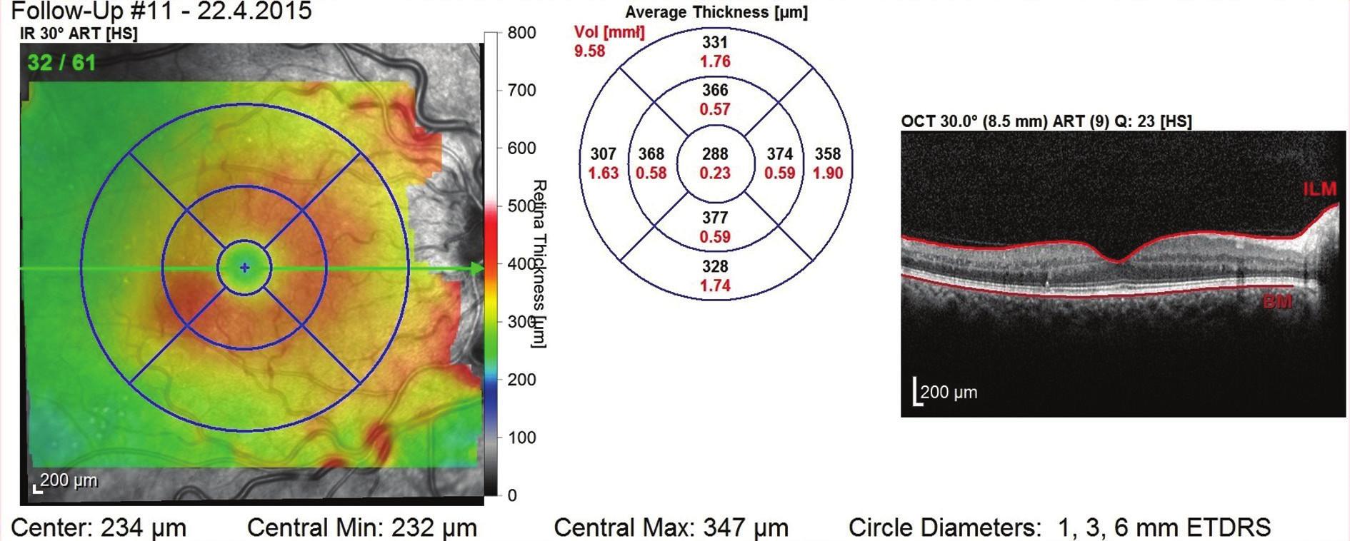 OCT snímek po dvou letech – i bez aplikací během 2. roku léčby přetrvává stabilní nález bez známek ME s dobrou morfologií zevních vrstev neuroretiny, CRT 288 μm a NKZO 85 písmen ETDRS optotypu