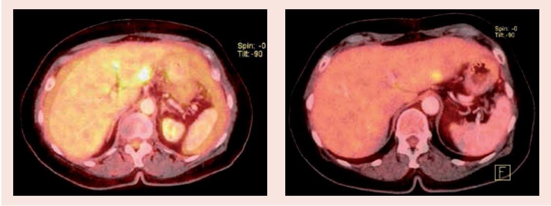 PET/CT vyšetření před zahájením léčby (1.1) a po 3 měsících (1.2) – oblast jater