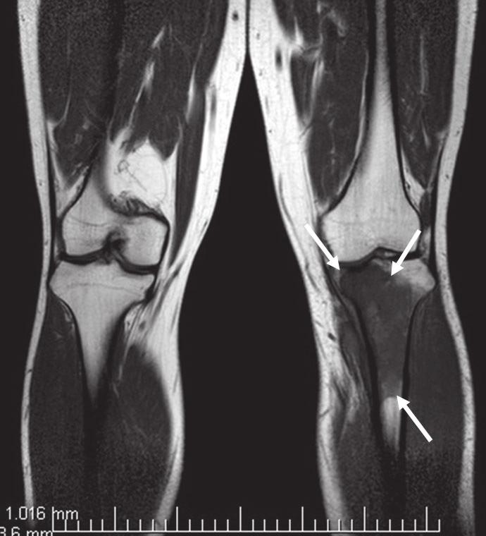 MR bérců, vyšetřovací sekvence T1TSE. Excentricky uložený defekt proximální tibie vlevo ventromediálně, hypointenzní proti normálu kosti, laločnatých ostrých kontur velikosti asi 40 × 30 × 72 mm s infiltrací spongiózy.
