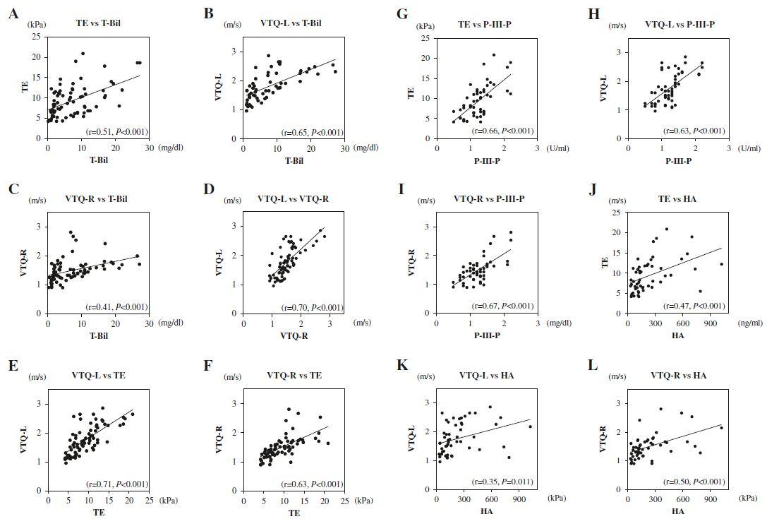 Correlations between T-Bil, Liver Elasticity, and Serum Markers of Liver Fibrosis. a TE and T-Bil (r = 0.51, P < 0.001), b VTQ-L and T-Bil (r = 0.65, <i>P</i> < 0.001), c VTQ-R and T-Bil (r = 0.41, <i>P</i> < 0.001), d VTQ-L and VTQ-R (r = 0.70, P < 0.001), e VTQ-L and TE (r = 0.71, P < 0.001), f VTQ-R and TE (r = 0.63, <i>P</i> < 0.001), g TE and P-III-P (r = 0.66, <i>P</i> < 0.001), h VTQ-L and P-III-P (r = 0.63, P < 0.001), i VTQ-R and P-III-P (r = 0.67, P < 0.001), j TE and HA (r = 0.47, P < 0.001), k VTQ-L and HA (r = 0.35, <i>P</i> < 0.001), l VTQ-R and HA (r = 0.50, P < 0.001)