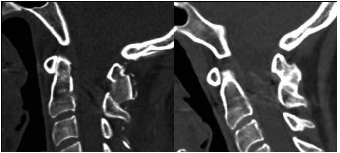 Průběh kostního hojení zobrazený CT sagitální rekonstrukcí – stav po operaci a dokončená fúze oblouků C1/C2 rok po výkonu.