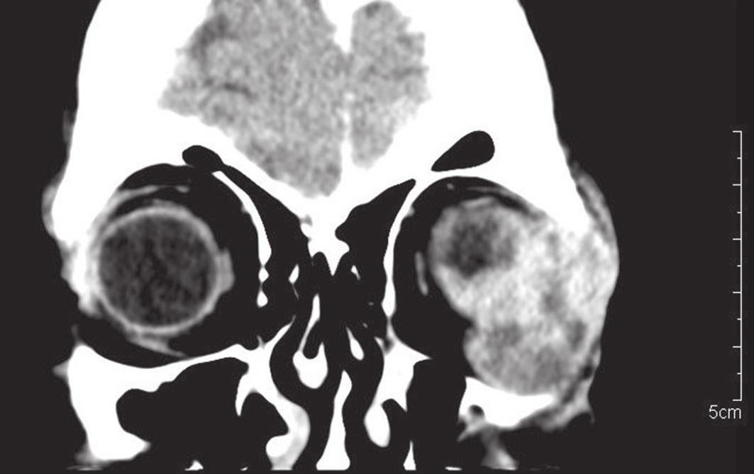 Masívna infiltrácia tkanív orbity na CT