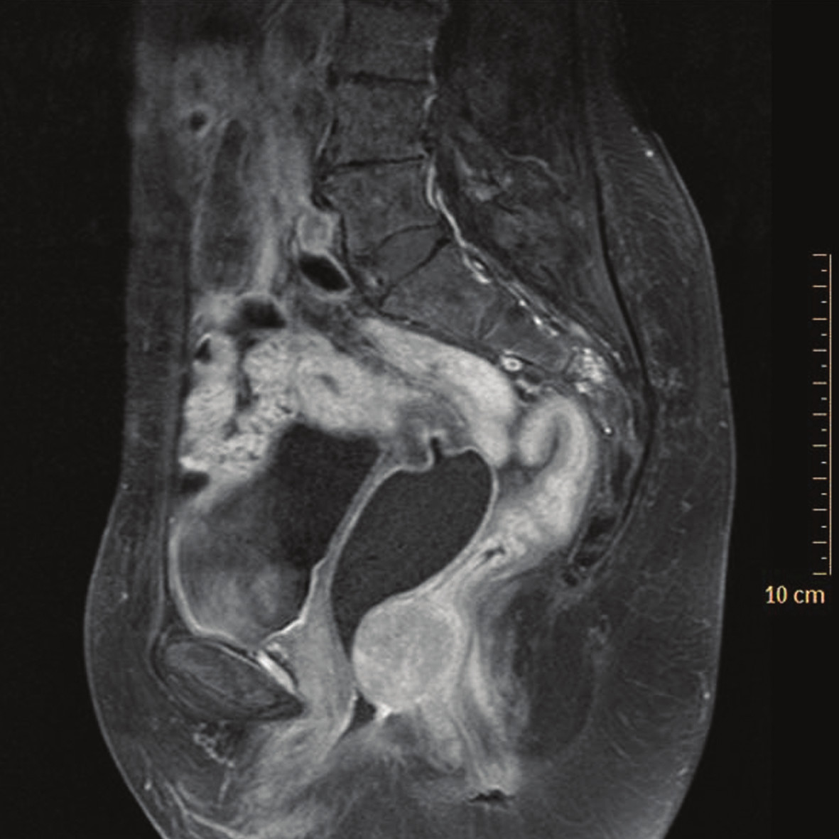 Obr. 1a. Sagitálny rez panvou v T1 vážení s vysýtením gadolíniom (26. 8. 2009) - pred liečbou.