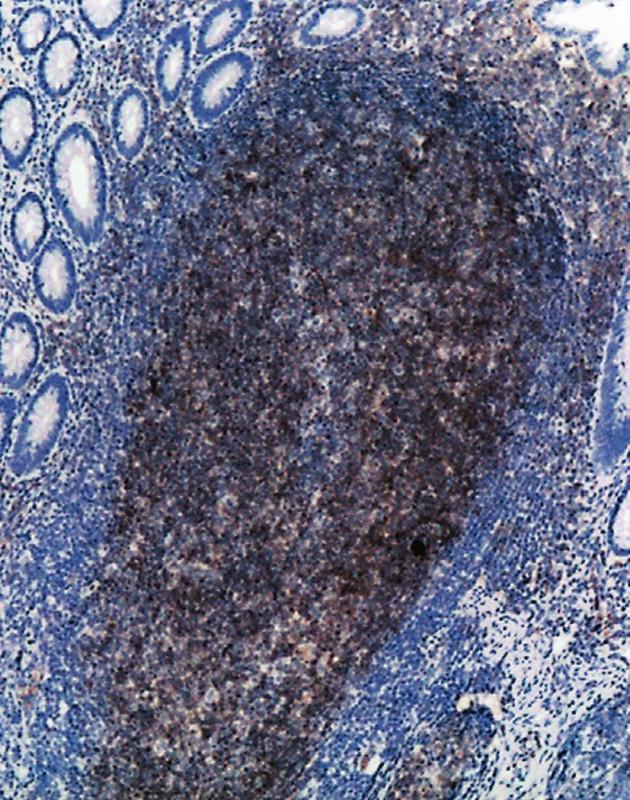 Mikroskopická ložiska FL ve sliznici tenkého střeva jsou CD10 pozitivní. (50krát)