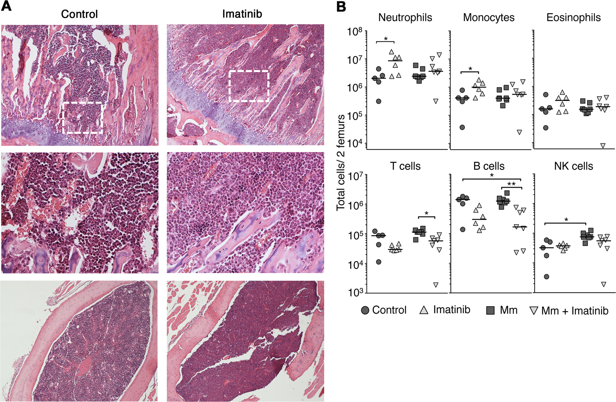 Effects of imatinib on neutrophils and monoctyes in bone marrow.