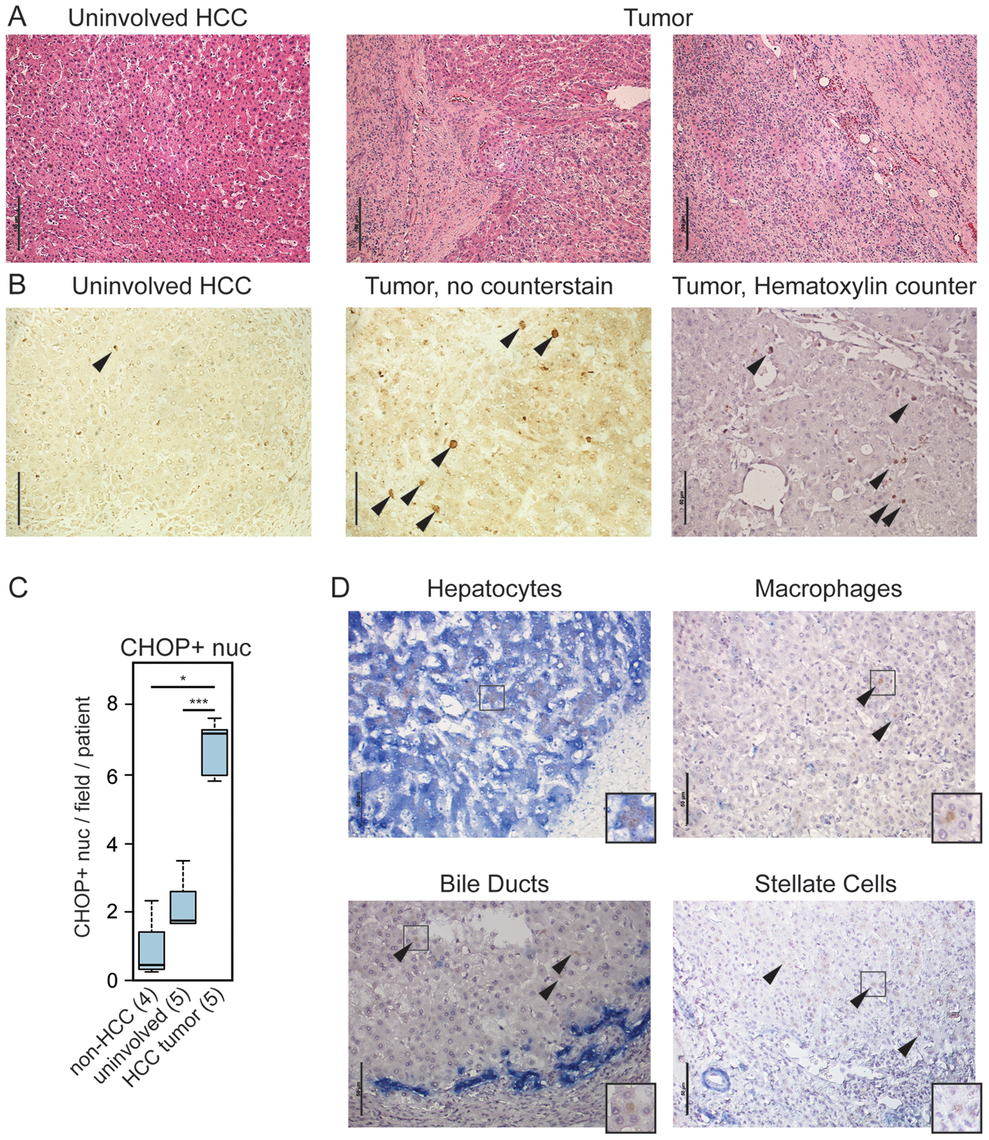 CHOP is expressed in human HCC tumors.