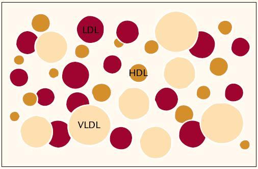 Lipoproteinový profil plazmy – heterogenní rodiny lipoproteinů nesou různý aterogenní potenciál.