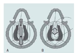 Anastomóza s augmentací. A – Úplné přerušení močové trubice, podélné otevření uretrálních konců podél dorzálního povrchu a sutura graftu přes corpora. B – Distální konec močové trubice je stažen směrem dolů a proximální uretra je současně vytlačena tak, aby překrývala graft, a močová trubice je uzavřena na ventrálním povrchu technikou konec ke konci.