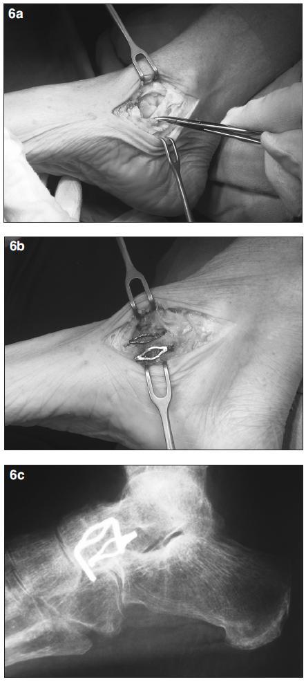 <strong>a)</strong> peroperační snímek – talonavikulární kloub, prasklá šlacha m. tibialis  posterior, <strong>b)</strong> fixace kloubu 2 paměťovými skobkami, <strong>c)</strong> rtg snímek nohy po zhojené artrodéze talonavikulárního kloubu, fixace 2 paměťovými skobkami.