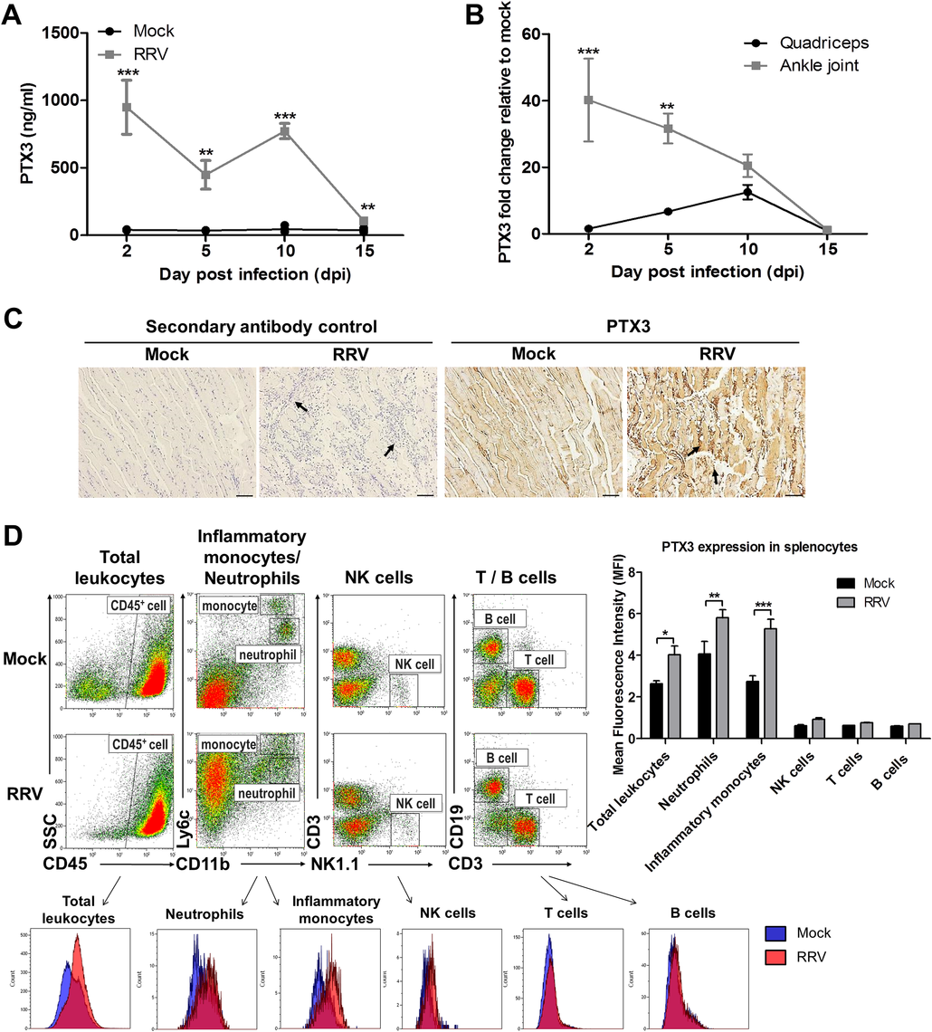 PTX3 expression is up-regulated following RRV infection in murine model.
