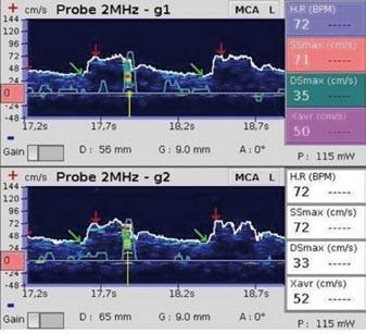 Mikroembolus. Žlutá šipka označuje mikroembolický signál (snímek pořízen během vyšetření pravo-levého zkratu pomocí směsi fyziologického roztoku a vzduchu).