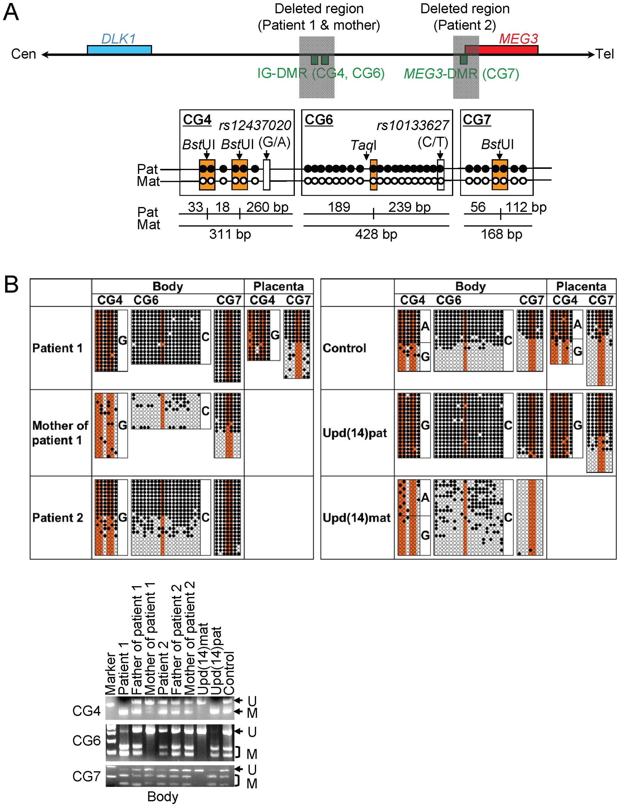 Methylation analysis of the IG-DMR (CG4 and CG6) and the <i>MEG3</i>-DMR (CG7).