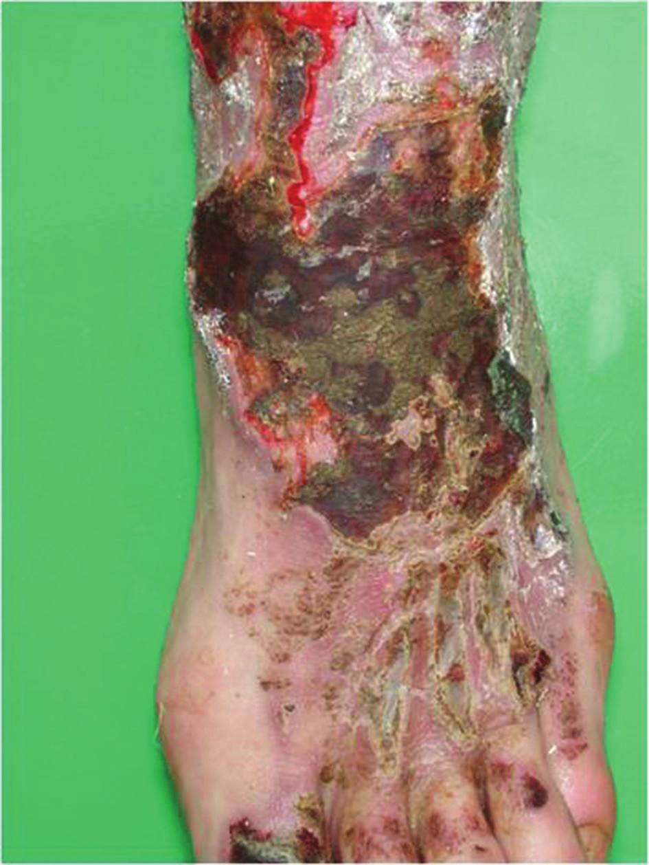 Akutní iritační dermatitida po solích chrómu (cauterisatio)