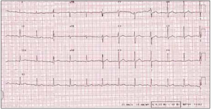 EKG při propuštění.