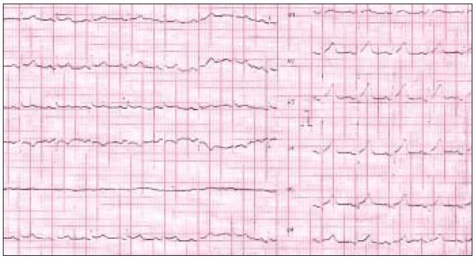 Obr. 3a. EKG-nález 44ročného muža, ktorý bol prijatý pre bolesti na hrudníku typu stenokardií počas týždeň trvajúceho febrilného ochorenia.