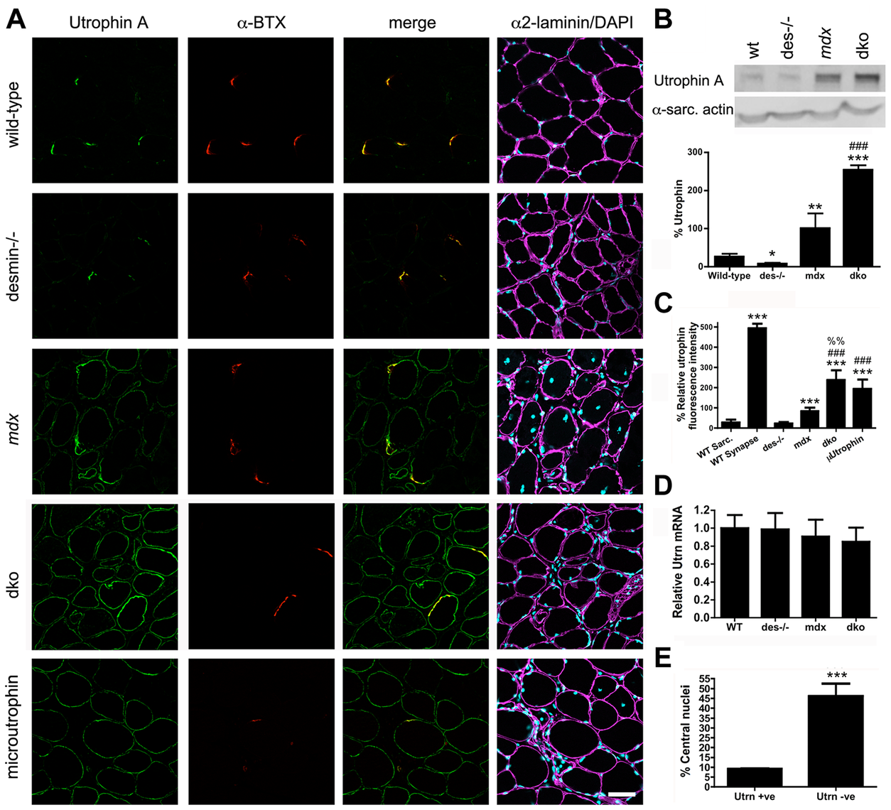 Expression and localization of utrophin in wild-type, desmin<sup>−/−</sup>, <i>mdx<sup>4cv</sup></i> and dko muscles at 11 weeks of age.