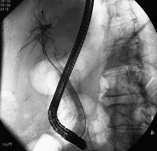 ERCP: metalický stent, obturace jeho proximální třetiny progredujícím tumorem. Fig. 2. ERCP: metalic stent, obturation of its proximal third by tumor masses.